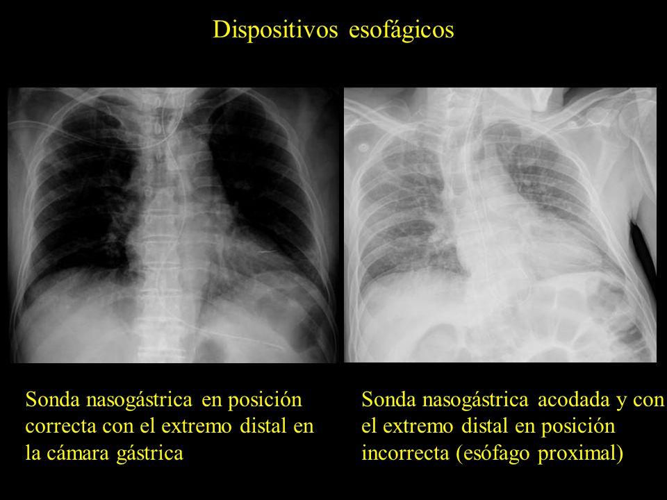 Dispositivos esofágicos Sonda nasogástrica en posición correcta con el extremo distal en la cámara gástrica Sonda nasogástrica acodada y con el extrem