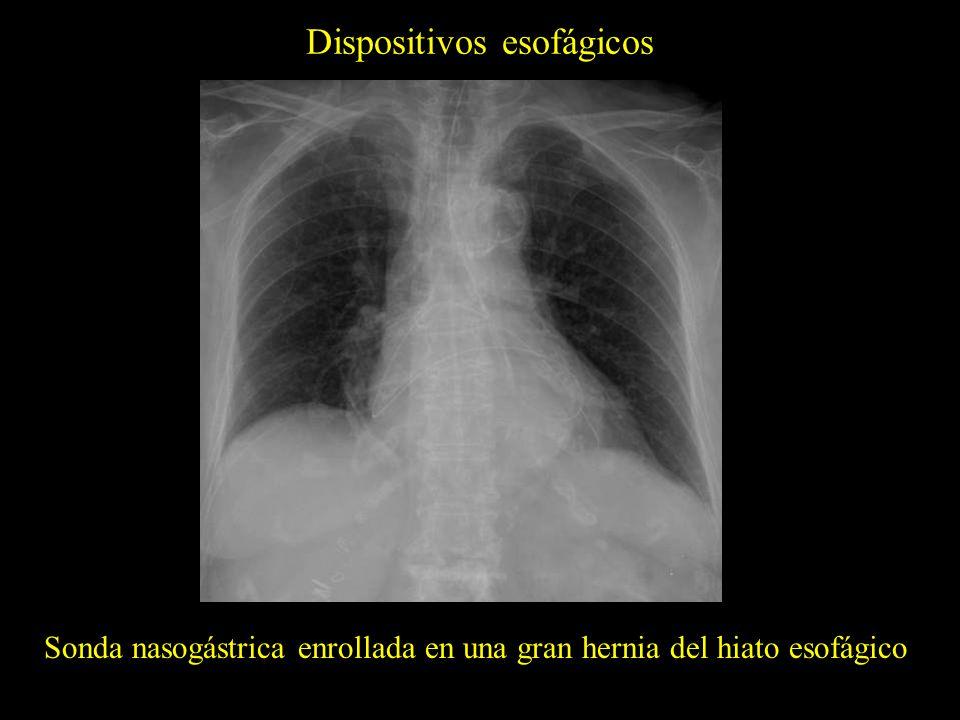 Dispositivos esofágicos Tubo de alimentación enteral con el extremo distal en el estómago Tubo de alimentación enteral con el extremo distal en el duodeno y sonda nasogástrica en posición correcta