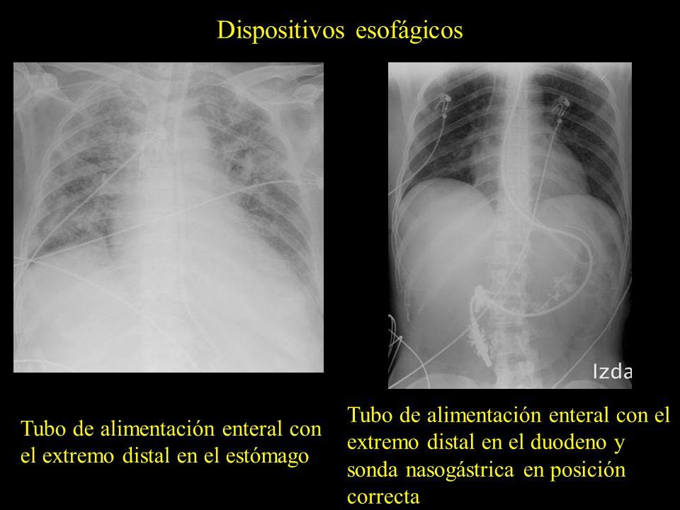 Dispositivos esofágicos Tubo de alimentación enteral con el extremo distal en el estómago Tubo de alimentación enteral con el extremo distal en el duo