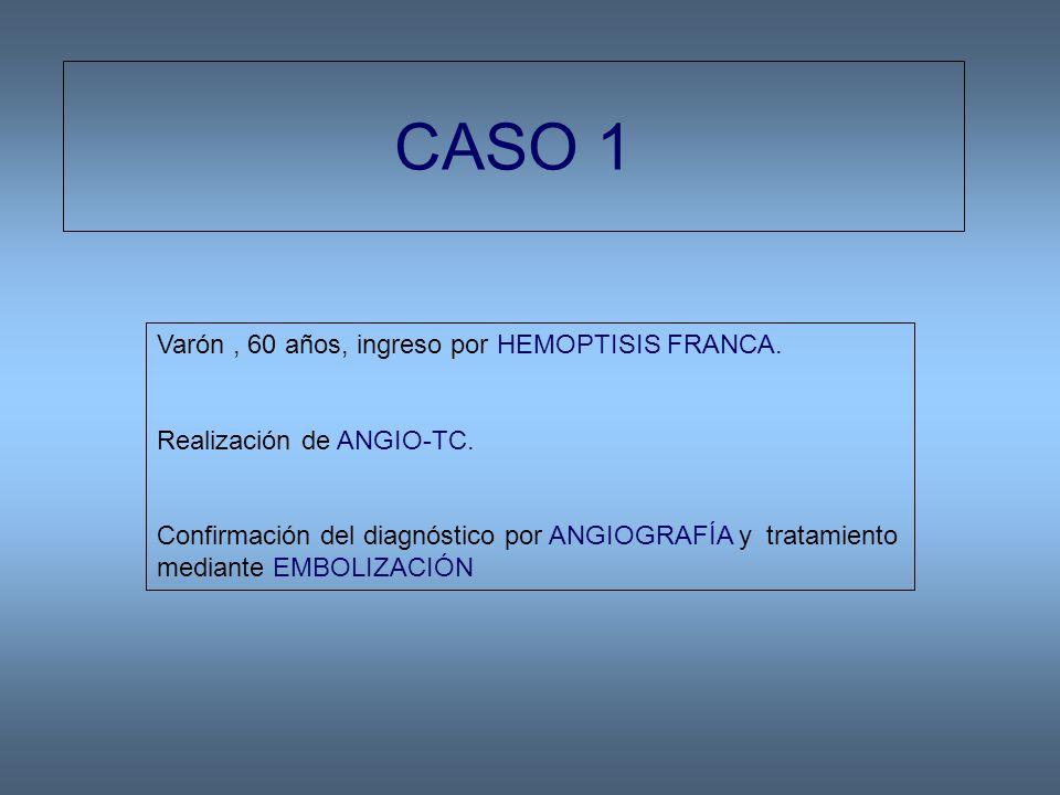 CASO 1 Varón, 60 años, ingreso por HEMOPTISIS FRANCA.