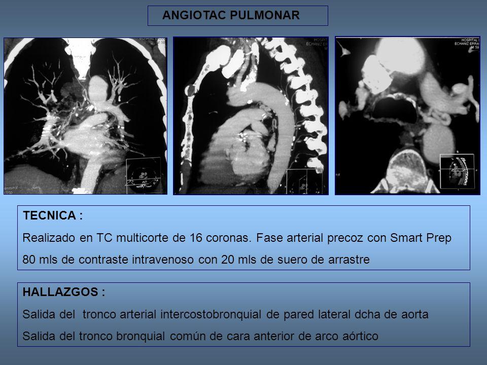 IMÁGENES DE TC VOLUMÉTRICAS HALLAZGOS : Salida del tronco arterial intercostobronquial de pared lateral dcha de aorta Salida del tronco bronquial común de cara anterior de arco aórtico