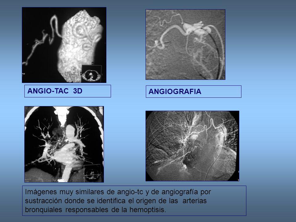 Imágenes muy similares de angio-tc y de angiografía por sustracción donde se identifica el origen de las arterias bronquiales responsables de la hemoptisis.