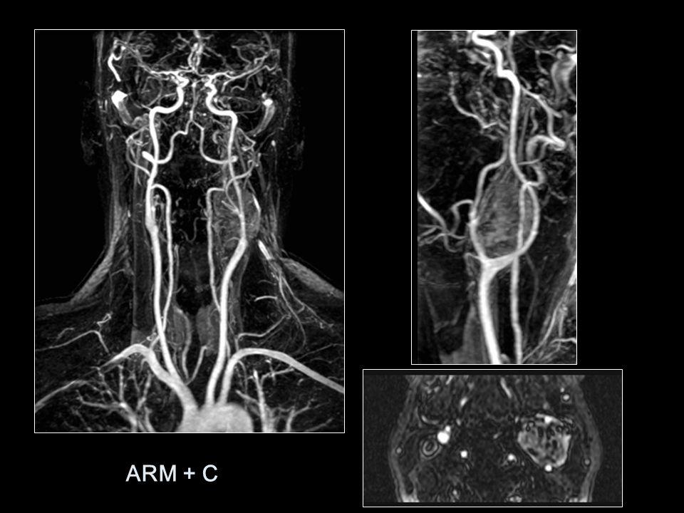 ARM + C: GLOMUS VAGAL QUE DESPLAZA LA BIFURCACIÓN CAROTÍDEA ANTERIORMENTE