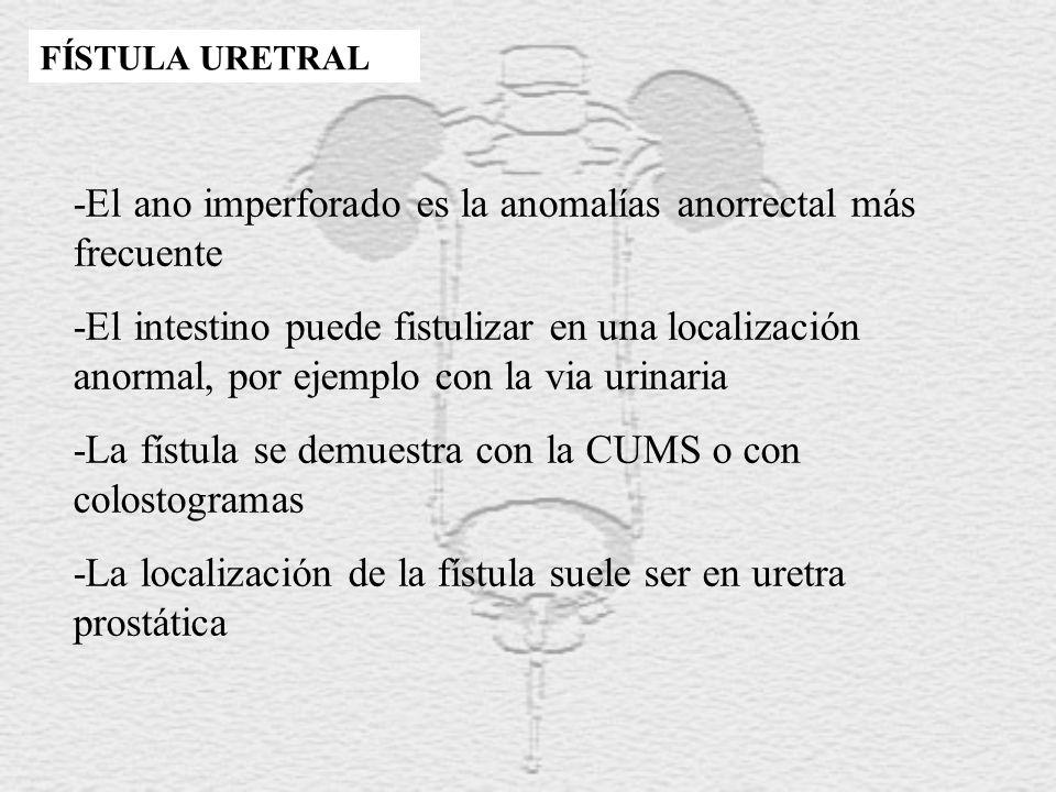 FÍSTULA URETRAL -El ano imperforado es la anomalías anorrectal más frecuente -El intestino puede fistulizar en una localización anormal, por ejemplo c