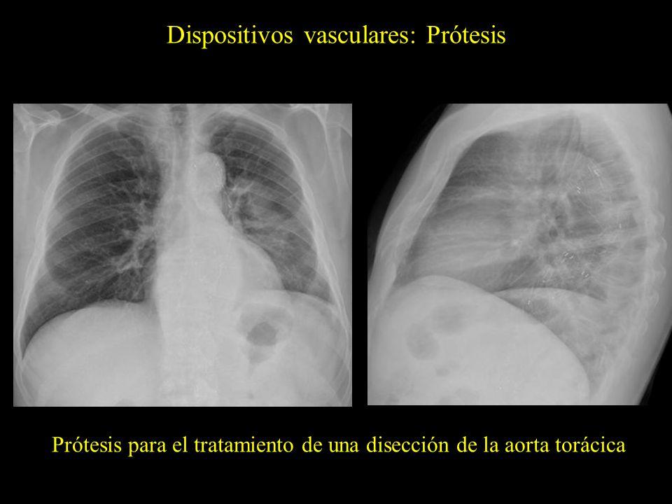 Dispositivos vasculares: Prótesis Prótesis para el tratamiento de una disección de la aorta torácica