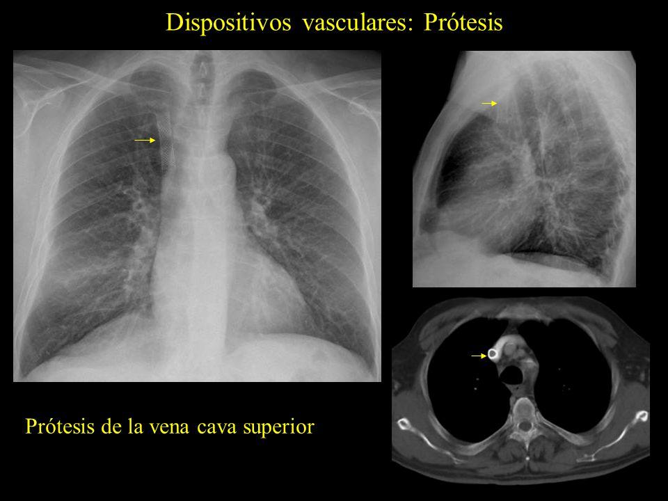 Dispositivos vasculares: Prótesis Prótesis de la vena subclavia izquierda