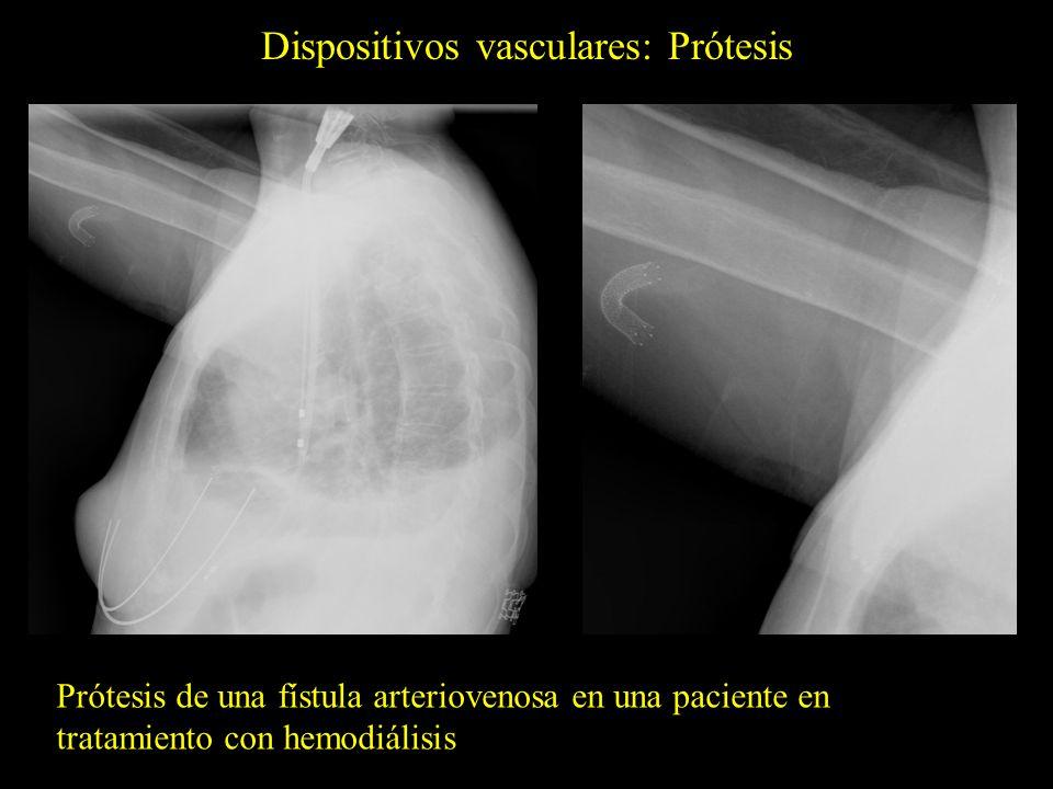 Dispositivos vasculares: Prótesis Prótesis de una fístula arteriovenosa en una paciente en tratamiento con hemodiálisis
