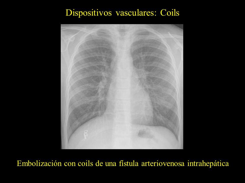Dispositivos vasculares: Coils Embolización con coils de una fístula arteriovenosa intrahepática