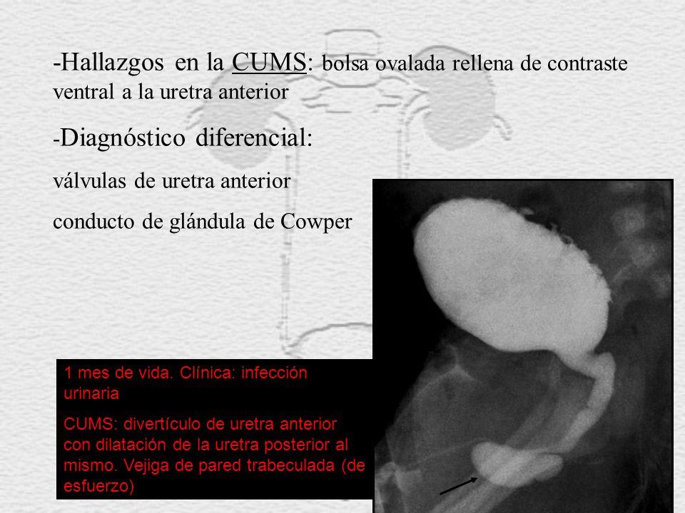 -Hallazgos en la CUMS: bolsa ovalada rellena de contraste ventral a la uretra anterior - Diagnóstico diferencial: válvulas de uretra anterior conducto de glándula de Cowper 1 mes de vida.
