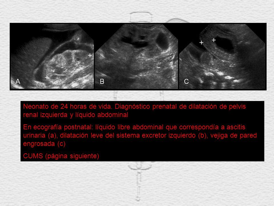 Neonato de 24 horas de vida. Diagnóstico prenatal de dilatación de pelvis renal izquierda y líquido abdominal En ecografía postnatal: líquido libre ab