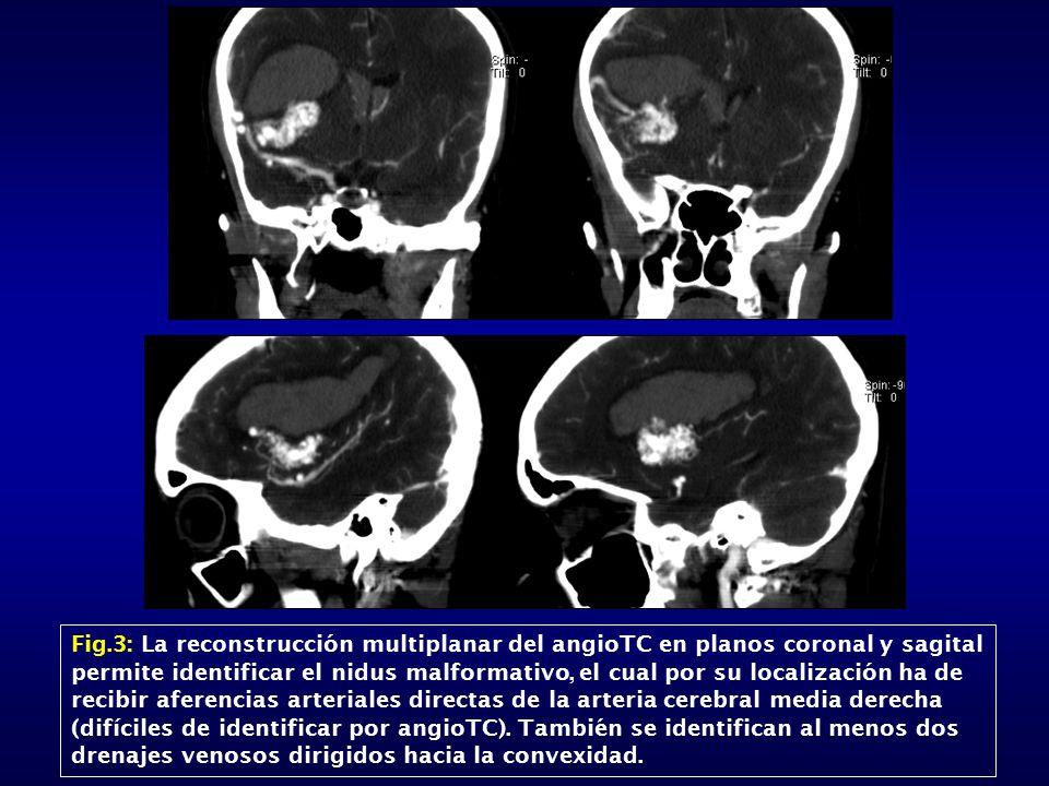 Fig.3: La reconstrucción multiplanar del angioTC en planos coronal y sagital permite identificar el nidus malformativo, el cual por su localización ha de recibir aferencias arteriales directas de la arteria cerebral media derecha (difíciles de identificar por angioTC).