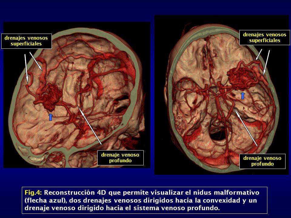 Fig.4: Reconstrucción 4D que permite visualizar el nidus malformativo (flecha azul), dos drenajes venosos dirigidos hacia la convexidad y un drenaje venoso dirigido hacia el sistema venoso profundo.