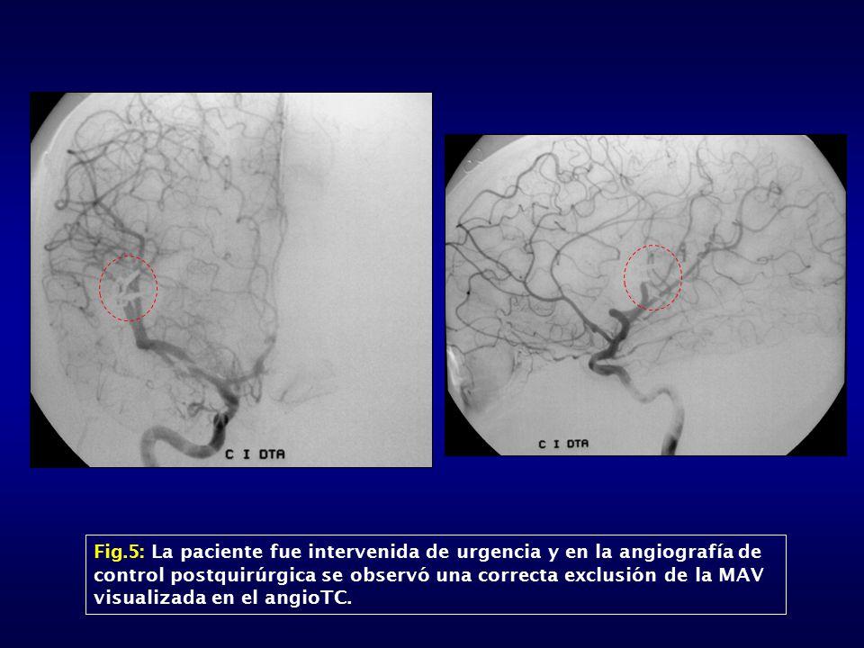 Fig.5: La paciente fue intervenida de urgencia y en la angiografía de control postquirúrgica se observó una correcta exclusión de la MAV visualizada e