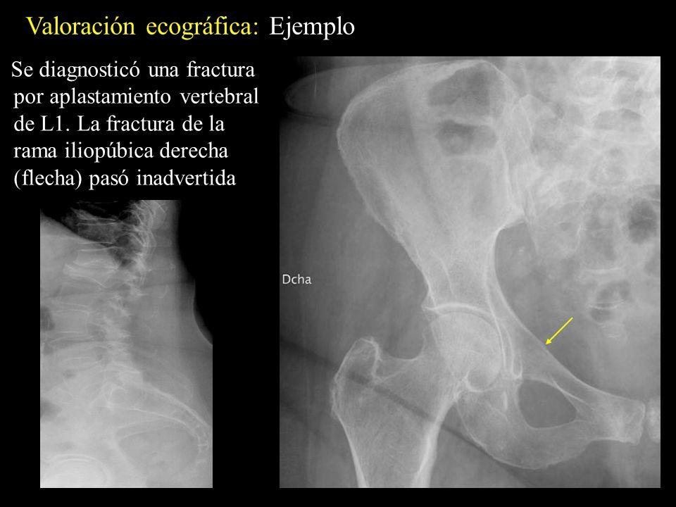 Valoración ecográfica: Ejemplo Se diagnosticó una fractura por aplastamiento vertebral de L1. La fractura de la rama iliopúbica derecha (flecha) pasó