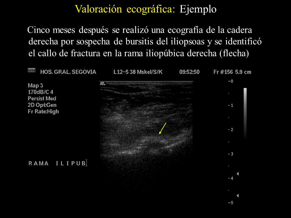 Valoración ecográfica: Ejemplo Cinco meses después se realizó una ecografía de la cadera derecha por sospecha de bursitis del iliopsoas y se identific