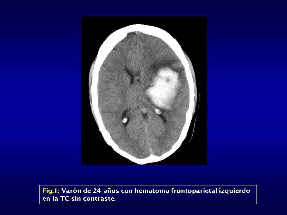 Fig.1: Varón de 24 años con hematoma frontoparietal izquierdo en la TC sin contraste.
