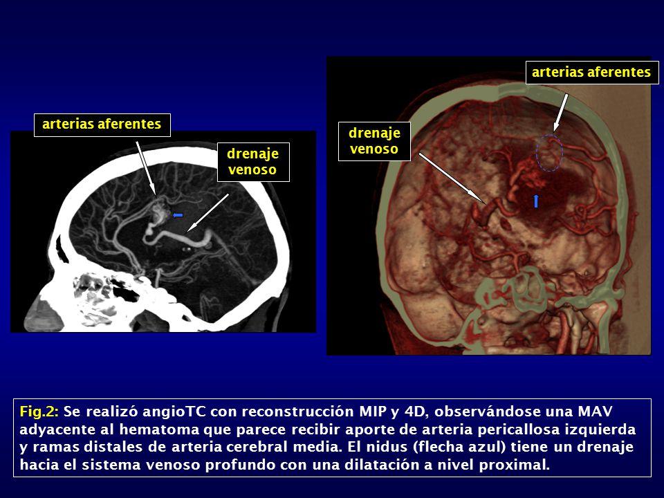 arterias aferentes drenaje venoso Fig.2: Se realizó angioTC con reconstrucción MIP y 4D, observándose una MAV adyacente al hematoma que parece recibir aporte de arteria pericallosa izquierda y ramas distales de arteria cerebral media.