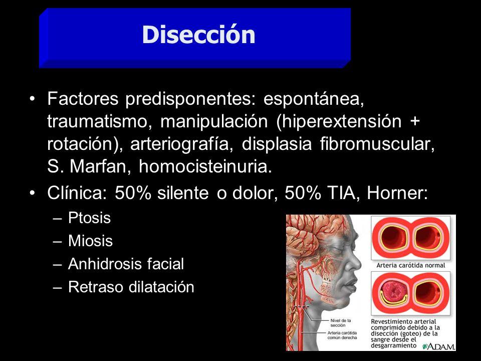 Disección ACI izq.distal. 1.- ARM+C, estenosis inusual.