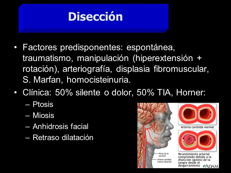 Factores predisponentes: espontánea, traumatismo, manipulación (hiperextensión + rotación), arteriografía, displasia fibromuscular, S. Marfan, homocis