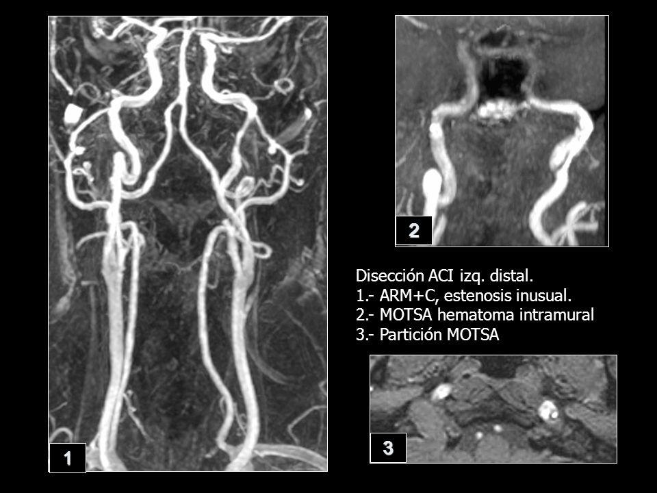 Disección ACI izq. distal. 1.- ARM+C, estenosis inusual. 2.- MOTSA hematoma intramural 3.- Partición MOTSA 1 2 3