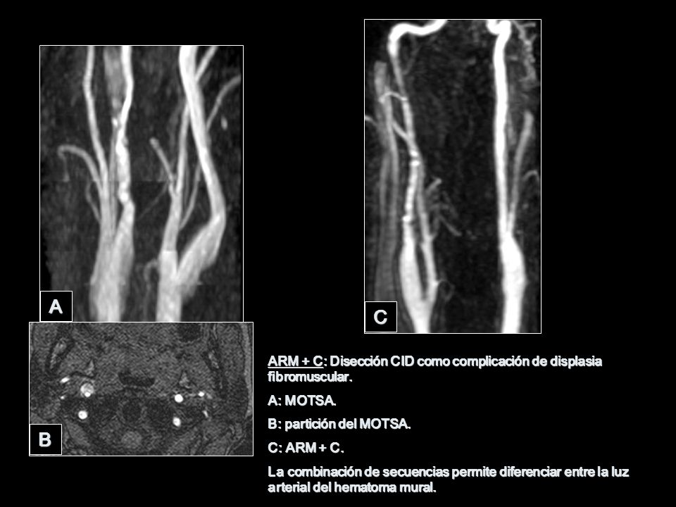 ARM + C: Disección CID como complicación de displasia fibromuscular. A: MOTSA. B: partición del MOTSA. C: ARM + C. La combinación de secuencias permit