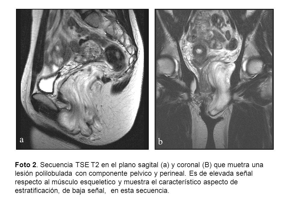 a b Foto 2. Secuencia TSE T2 en el plano sagital (a) y coronal (B) que muetra una lesión polilobulada con componente pelvico y perineal. Es de elevada