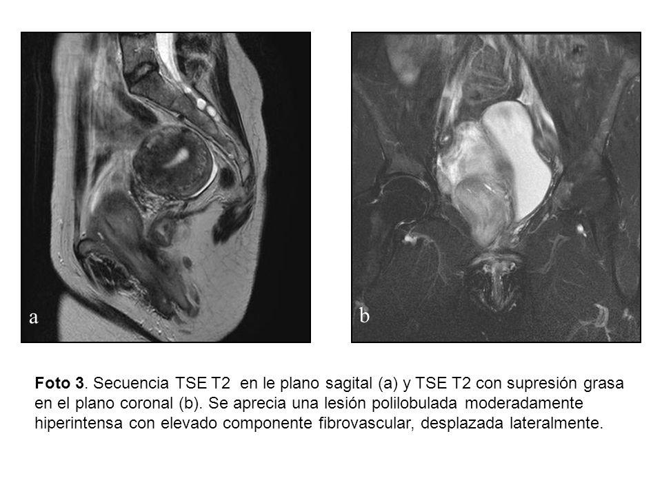 Foto 3. Secuencia TSE T2 en le plano sagital (a) y TSE T2 con supresión grasa en el plano coronal (b). Se aprecia una lesión polilobulada moderadament