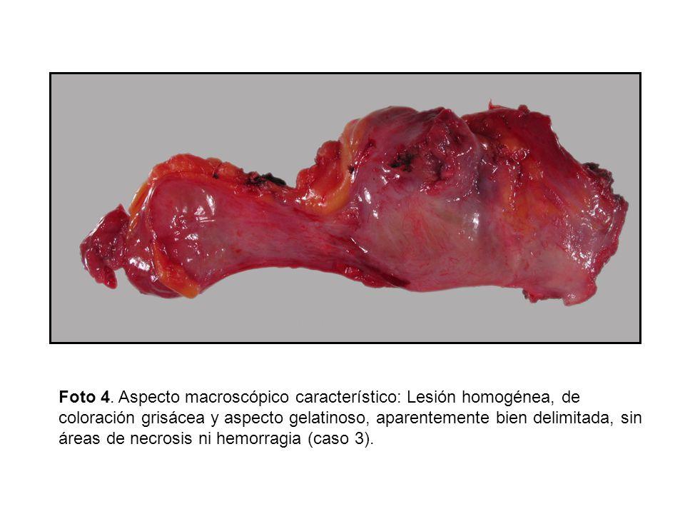 Foto 4. Aspecto macroscópico característico: Lesión homogénea, de coloración grisácea y aspecto gelatinoso, aparentemente bien delimitada, sin áreas d