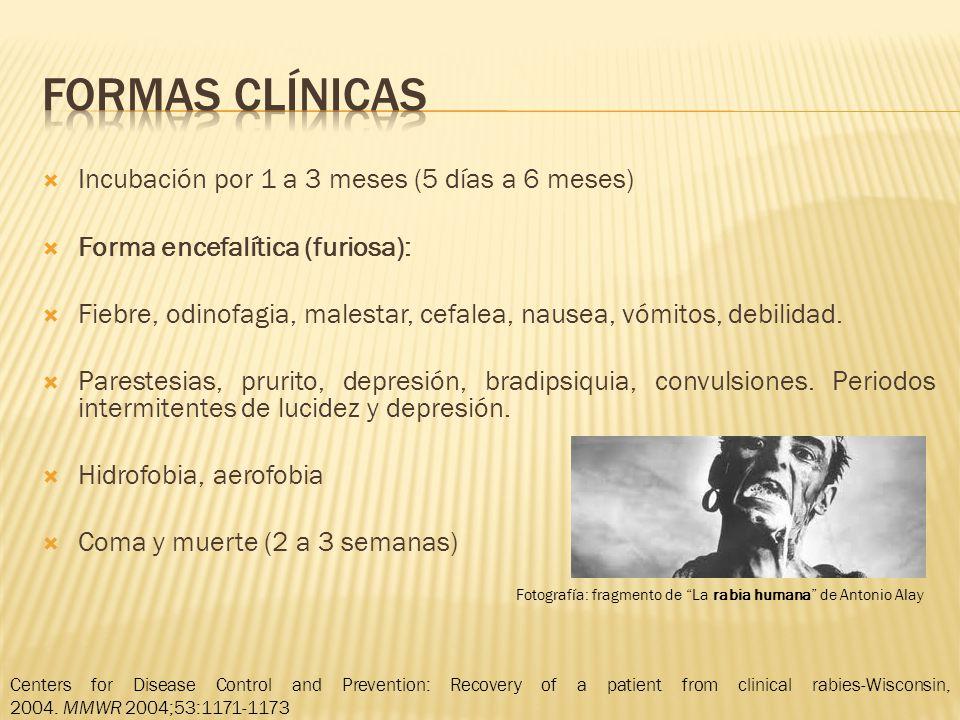 Incubación por 1 a 3 meses (5 días a 6 meses) Forma encefalítica (furiosa): Fiebre, odinofagia, malestar, cefalea, nausea, vómitos, debilidad. Pareste