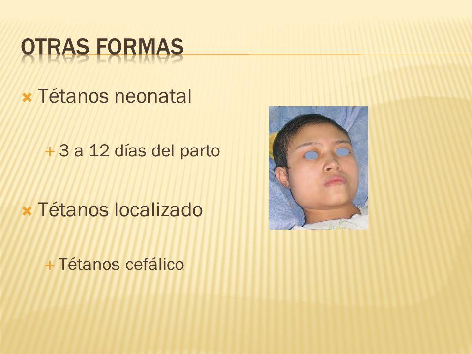 Tétanos neonatal 3 a 12 días del parto Tétanos localizado Tétanos cefálico