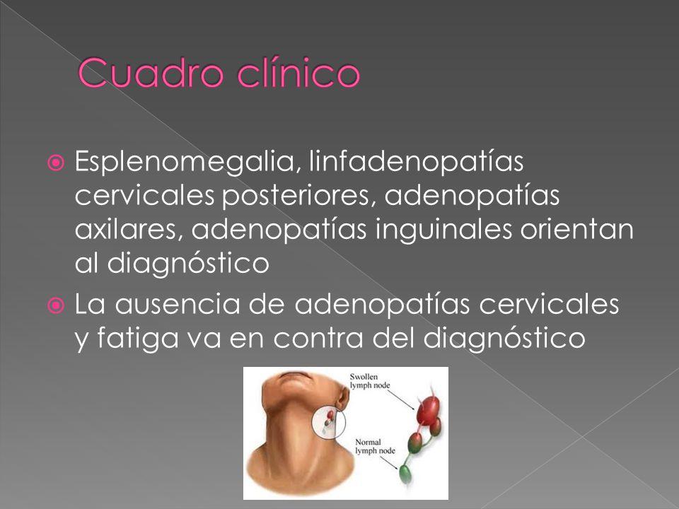 Esplenomegalia, linfadenopatías cervicales posteriores, adenopatías axilares, adenopatías inguinales orientan al diagnóstico La ausencia de adenopatía