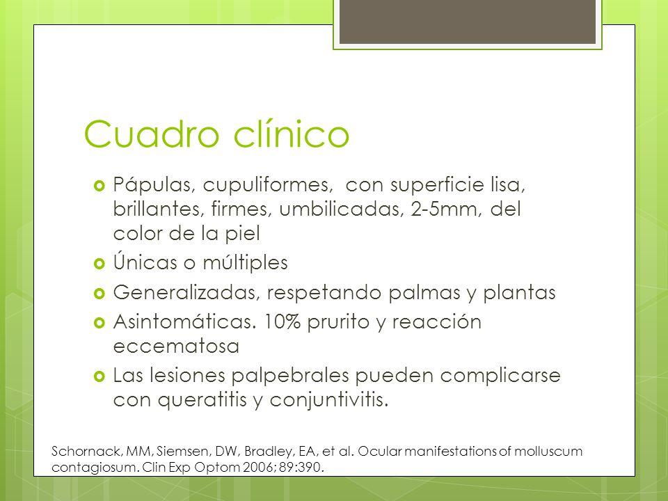 Cuadro clínico Pápulas, cupuliformes, con superficie lisa, brillantes, firmes, umbilicadas, 2-5mm, del color de la piel Únicas o múltiples Generalizad