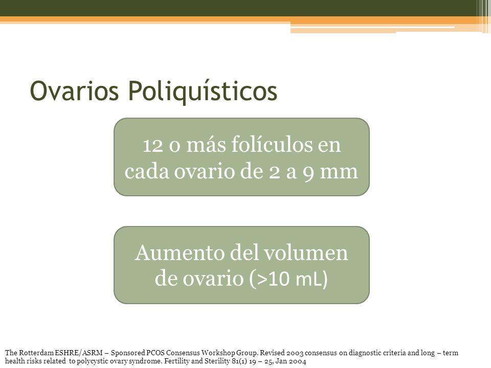 Ovarios Poliquísticos 12 o más folículos en cada ovario de 2 a 9 mm Aumento del volumen de ovario ( >10 mL) The Rotterdam ESHRE/ASRM – Sponsored PCOS