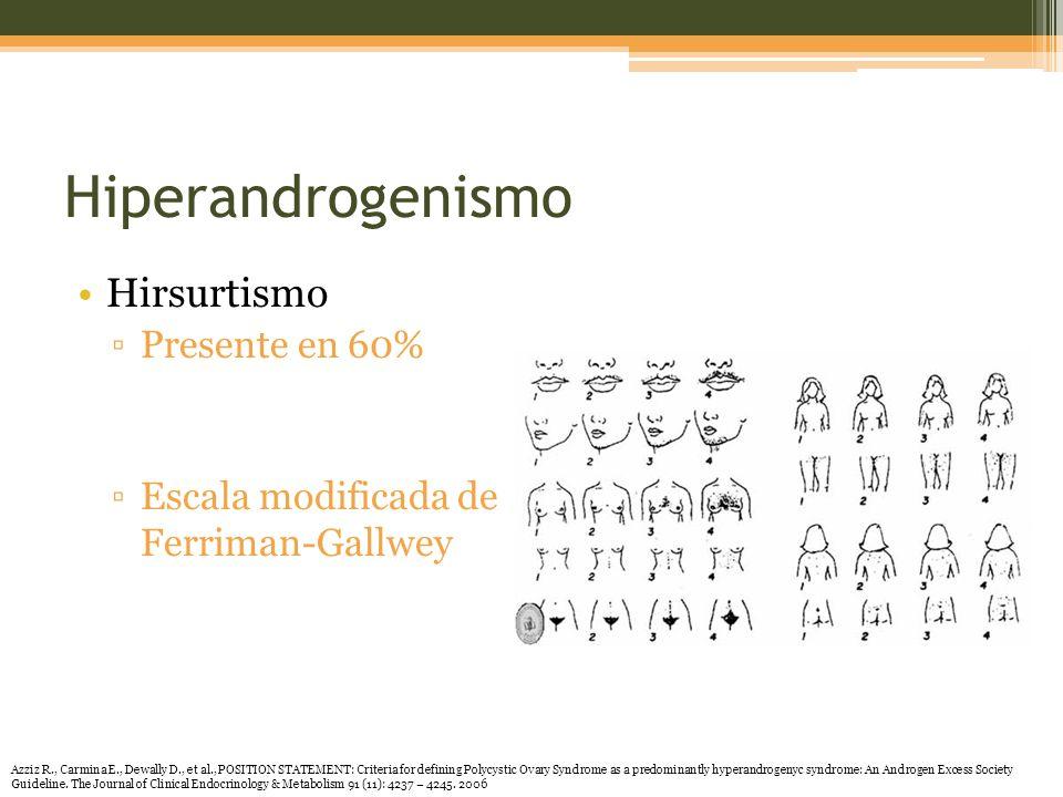 Hiperandrogenismo Hirsurtismo Presente en 60% Escala modificada de Ferriman-Gallwey Azziz R., Carmina E., Dewally D., et al., POSITION STATEMENT: Criteria for defining Polycystic Ovary Syndrome as a predominantly hyperandrogenyc syndrome: An Androgen Excess Society Guideline.