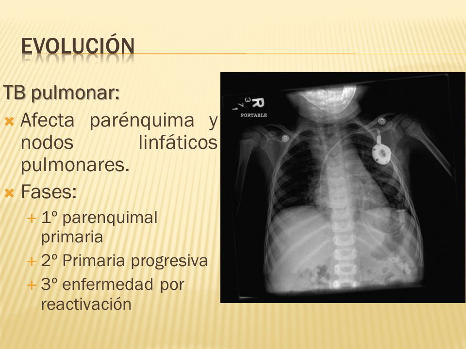 TB pulmonar: Afecta parénquima y nodos linfáticos pulmonares. Fases: 1º parenquimal primaria 2º Primaria progresiva 3º enfermedad por reactivación
