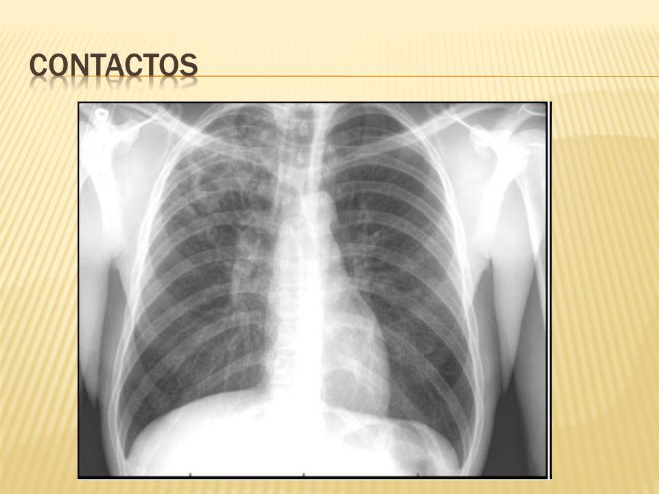 Linfadenopatía superficial Región cervical o peri cervical 50% síntomas sistémicos 33% hallazgos radiográficos patológicos