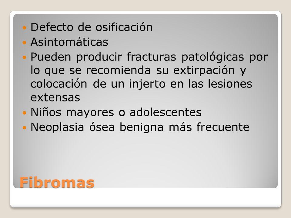 Lesiones óseas no malignas