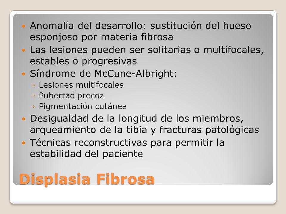 Displasia Osteofibrosa Tejido óseo reemplazado por tejido fibroso y trabéculas óseas inmaduras Antes de los 10 años Tibia Puede haber alteraciones endocrinológicas o cutáneas asociadas ( Síndrome de McCune-Albright) Tumefacción o aumento del miembro Rx: Imágenes líticas en vidrio esmerilado Bien delimitadas Centrales Bordes escleróticos Sin reacción perióstica Algunas lesiones pueden regresar espontáneamente