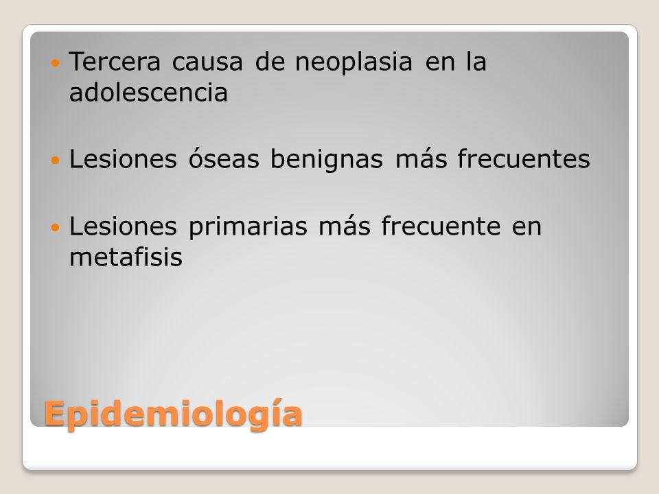 Epidemiología Tumores oseos malignos más frecuentes Osteosarcoma en menores de 20 años Sarcoma de Ewing en menores de 10 años Lesiones óseas focales se clasifican 3 categorias: Benigna Maligna (primaria y secundaria) No neoplasica