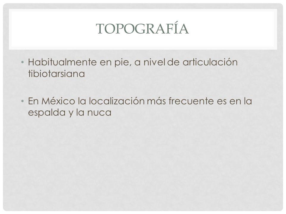 TOPOGRAFÍA Habitualmente en pie, a nivel de articulación tibiotarsiana En México la localización más frecuente es en la espalda y la nuca
