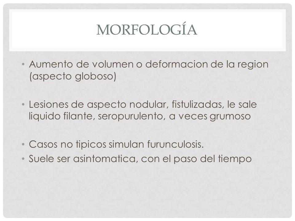 MORFOLOGÍA Aumento de volumen o deformacion de la region (aspecto globoso) Lesiones de aspecto nodular, fistulizadas, le sale liquido filante, seropur