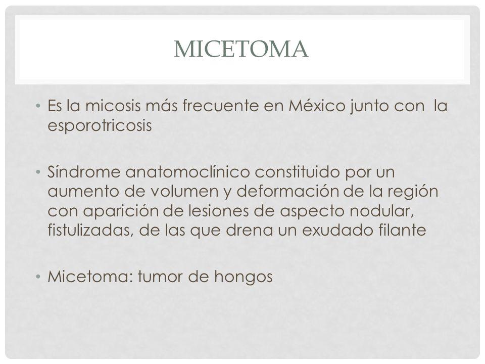 MICETOMA Es la micosis más frecuente en México junto con la esporotricosis Síndrome anatomoclínico constituido por un aumento de volumen y deformación