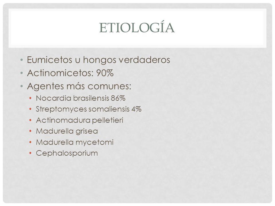 ETIOLOGÍA Eumicetos u hongos verdaderos Actinomicetos: 90% Agentes más comunes: Nocardia brasilensis 86% Streptomyces somaliensis 4% Actinomadura pell