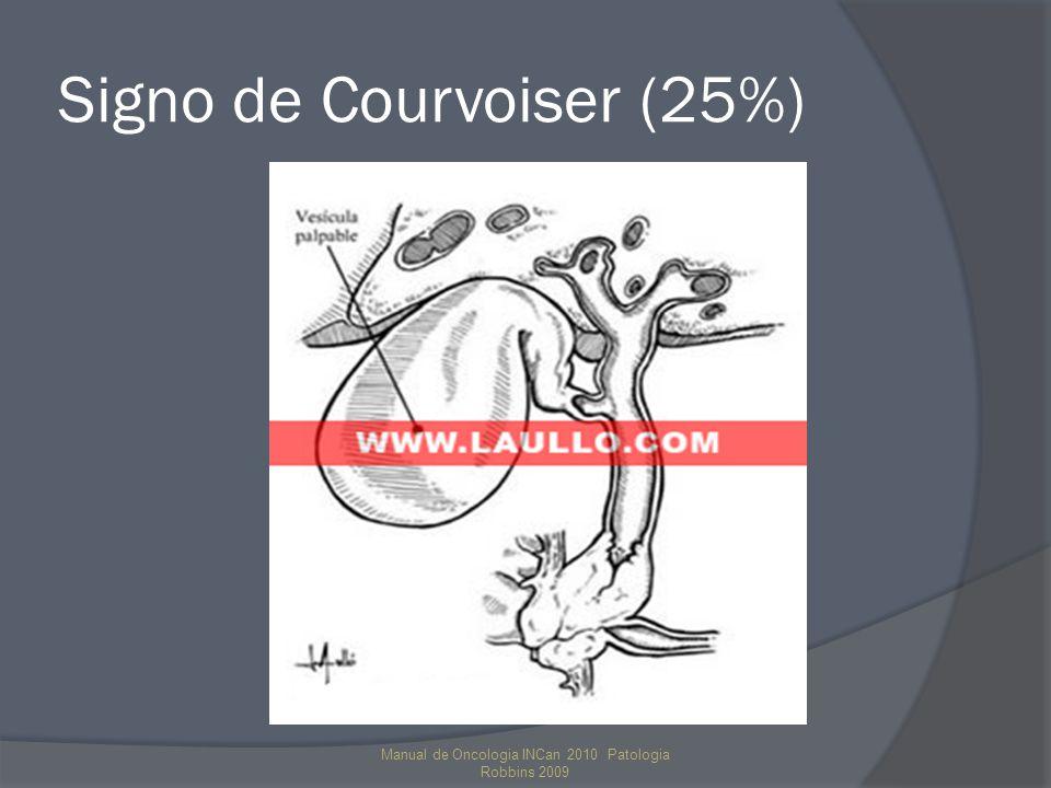 Signo de Courvoiser (25%) Manual de Oncologia INCan 2010 Patologia Robbins 2009