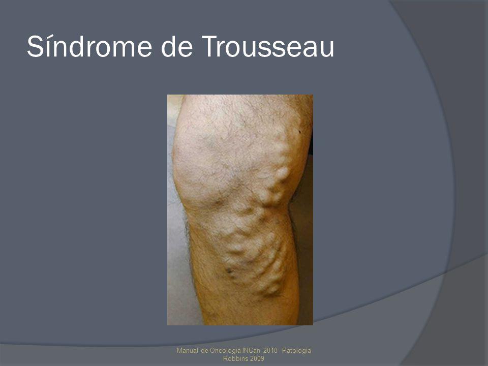 Síndrome de Trousseau Manual de Oncologia INCan 2010 Patologia Robbins 2009