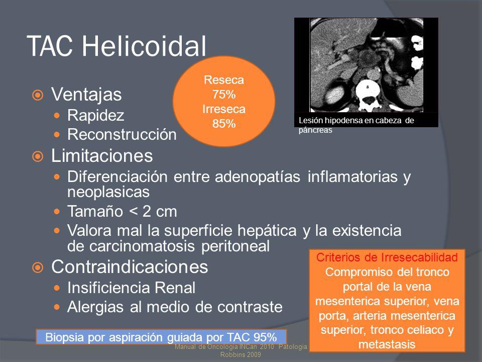TAC Helicoidal Ventajas Rapidez Reconstrucción Limitaciones Diferenciación entre adenopatías inflamatorias y neoplasicas Tamaño < 2 cm Valora mal la superficie hepática y la existencia de carcinomatosis peritoneal Contraindicaciones Insificiencia Renal Alergias al medio de contraste Lesión hipodensa en cabeza de páncreas Criterios de Irresecabilidad Compromiso del tronco portal de la vena mesenterica superior, vena porta, arteria mesenterica superior, tronco celiaco y metastasis Reseca 75% Irreseca 85% Biopsia por aspiración guiada por TAC 95% Manual de Oncologia INCan 2010 Patologia Robbins 2009