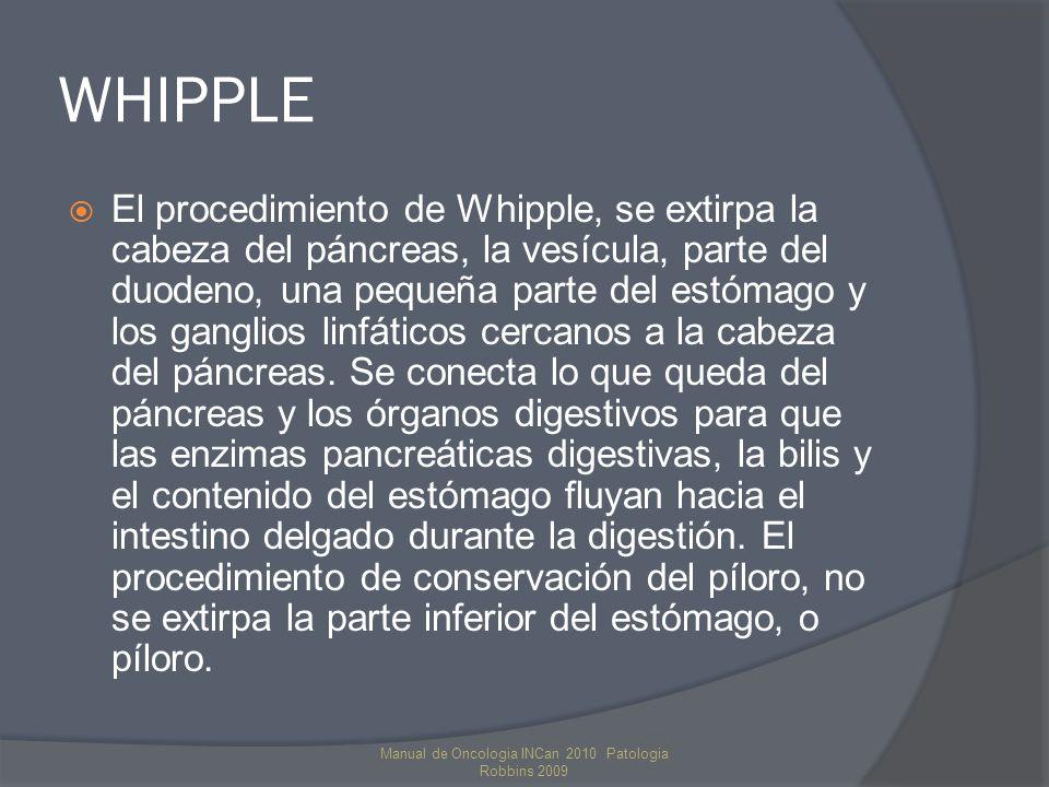 WHIPPLE El procedimiento de Whipple, se extirpa la cabeza del páncreas, la vesícula, parte del duodeno, una pequeña parte del estómago y los ganglios linfáticos cercanos a la cabeza del páncreas.