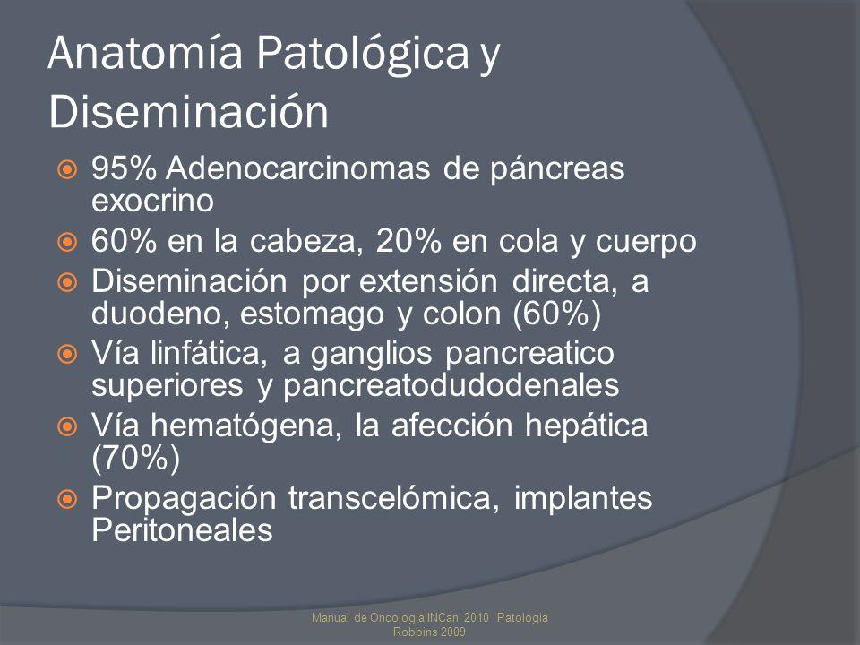 Patología Se pueden originar un gran número de lesiones a partir de su componente exocrino y endocrino Tumores sólidos no endocrinos Adenocarcinoma ductal (75%) Carcinoma adenoescamoso Carcinoma de células acinares Carcinoma de células gigantes Pancreatoblastoma Tumores quísticos no endocrinos Cistadenomcarcinoma seroso Neoplasia quística mucinosa Neoplasia intraductal papilar mucinosa Neoplasia quística papilar Manual de Oncologia INCan 2010 Patologia Robbins 2009