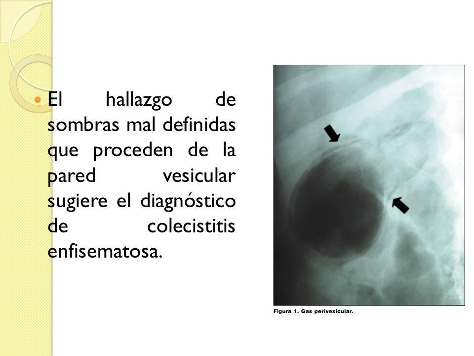 El hallazgo de sombras mal definidas que proceden de la pared vesicular sugiere el diagnóstico de colecistitis enfisematosa.