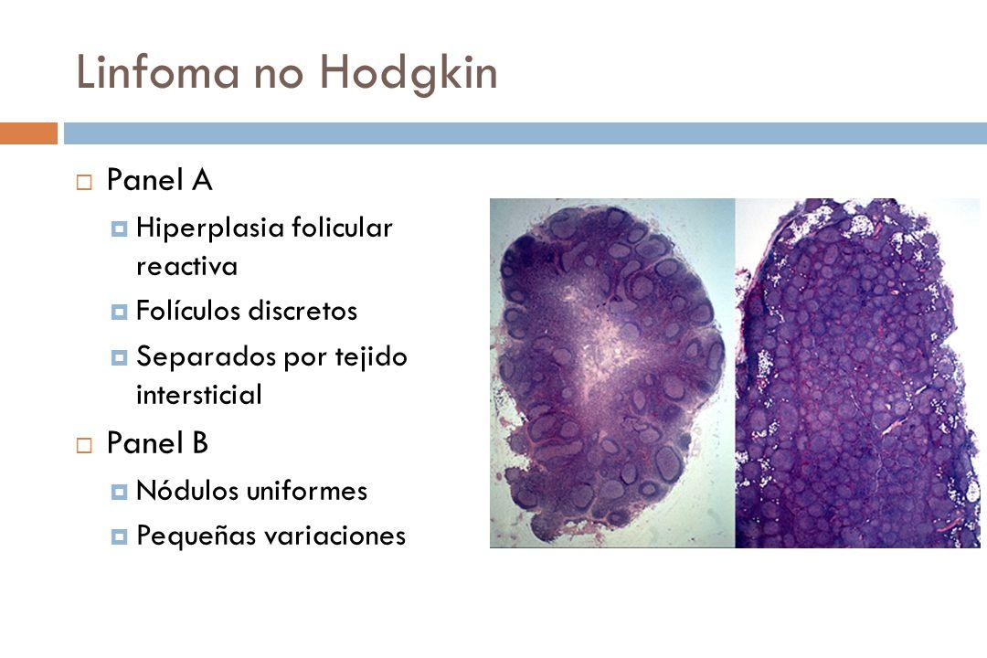Linfoma no Hodgkin Panel A Hiperplasia folicular reactiva Folículos discretos Separados por tejido intersticial Panel B Nódulos uniformes Pequeñas variaciones